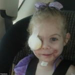 Family's outrage as 3-year old with facial injuries after being mauled by a pit bull is THROWN OUT of a KFC by employee who said she was 'scaring the other diners'